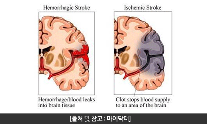 이상도신경외과 뇌졸중